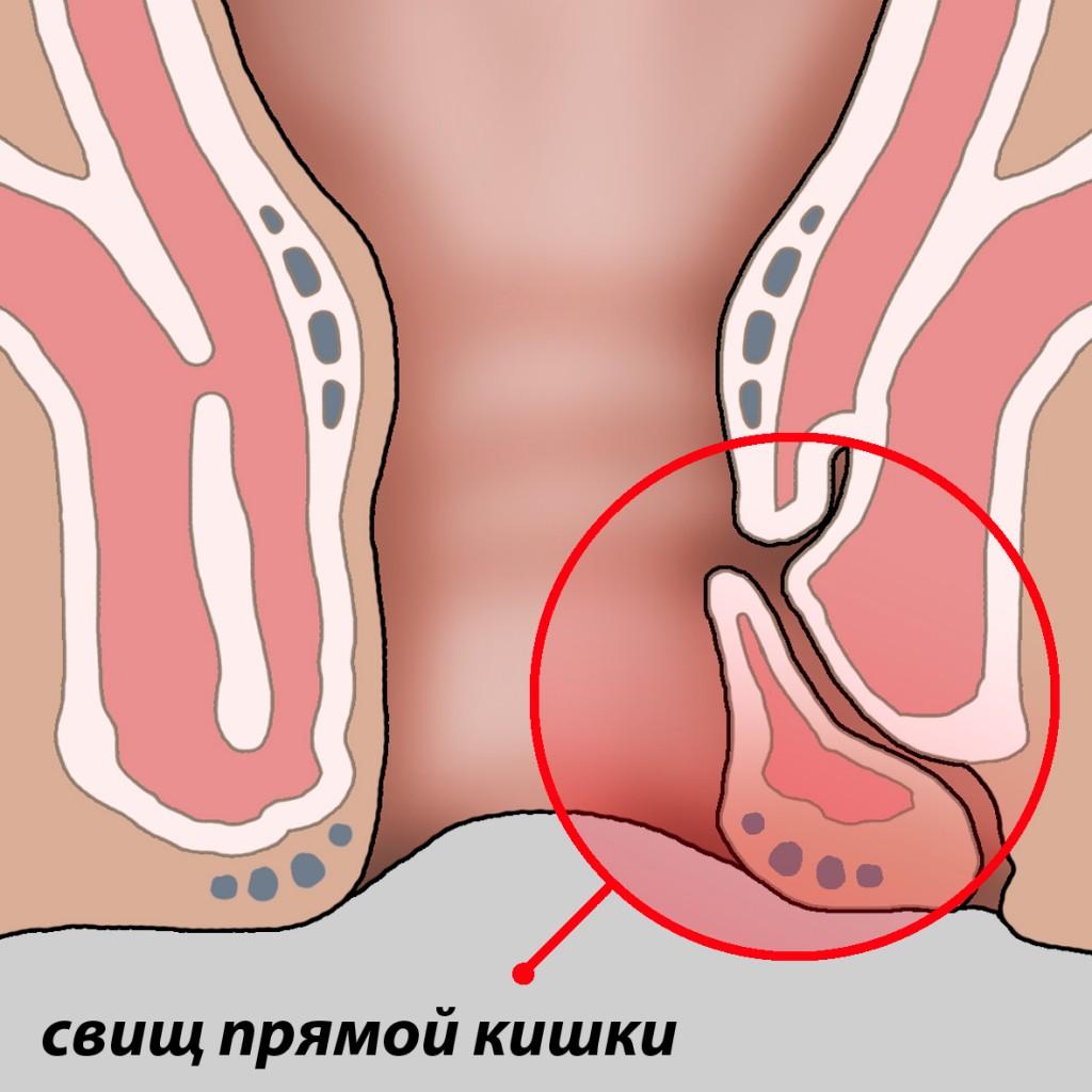 svish-pod-analnoy-treshinoy
